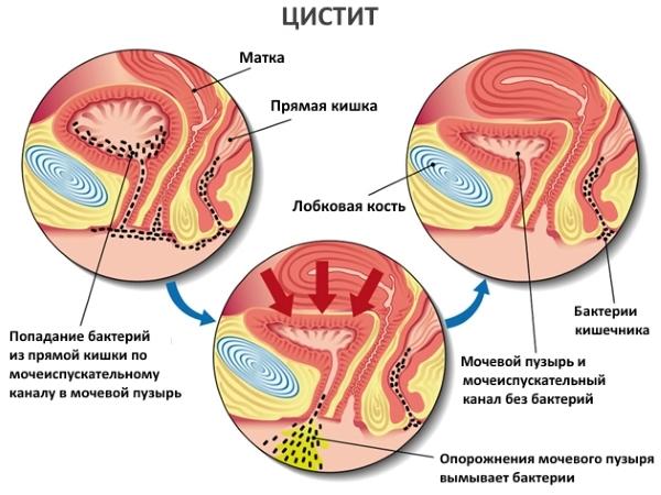 Причины геморрагического цистита у мужчин