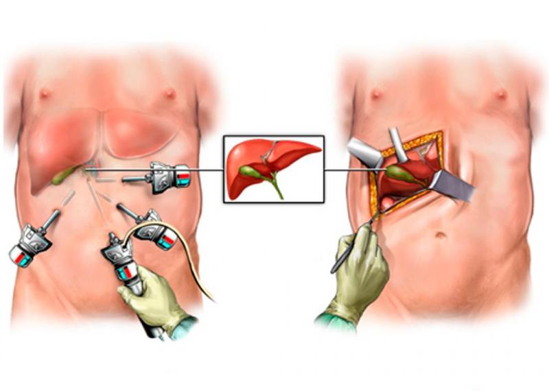 Восстановление после удаления желчного пузыря холецистэктомии
